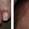 78-Year-Old Female with Rash on Hands and Face