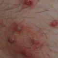 21-Year-Old Male with Asymptomatic Papular Eruption on Chest