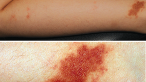 7-Year-Old Female with Rash on Legs