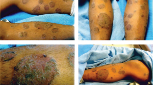 14-Year-Old Female with Pruritic Rash on Upper and Lower Extremities
