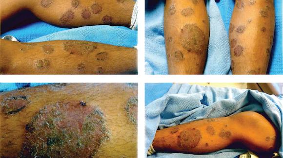 view year female with pruritic rash upper body derm case challenge
