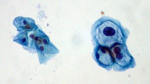 HPV: A Human Carcinogen