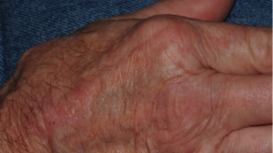 68-Year-Old Man with Itchy Rash on Both Hands