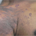 59-Year-Old Man in ER with Generalized Body Rash