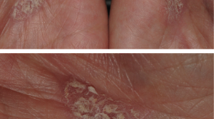 59-Year-Old Woman with Chronic Rash on Palms