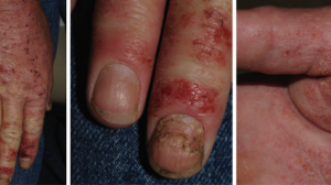 52-Year-Old Male Truck Driver with a Worsening Hand Rash