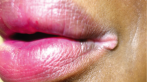 60-Year-Old Female with Lesion at Corner of Her Lips