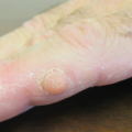 47-Year-Old Male with Solitary Nodule on Right Index Finger