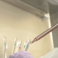 Reprogramming Patient's Own T-cells to Fight Leukemia