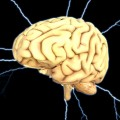Can Deep Brain Stimulation be Effective in Treating Movement Disorders?