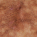 64-Year-Old Female with Rash on Lower Back