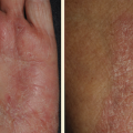 51-Year-Old Female with Hand Eczema