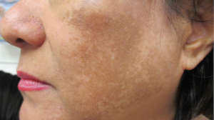 45-Year-Old Female With Face Macules and Patches