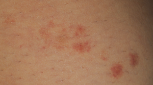 22-Year-Old Female with Rash on Legs