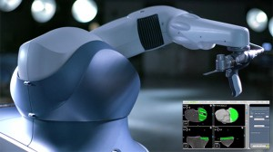 Robotic-Arm Assisted Surgery for Hip & Knee Replacements Provides Actionable Intra-Operative Data