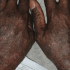 45-Year-Old Male with Photodistributed Rash