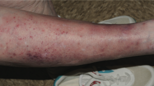 75-Year-Old Female with Rash on Lower Extremities