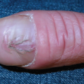 42-Year-Old Male with Abnormal-Looking Thumbnails
