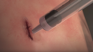 Adhesive Surgical Hydrogel Seals Wounds without Sutures