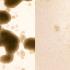 Zika Virus Appears to Preferentially Target Glioblastoma Stem Cells