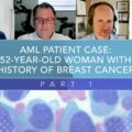 AML Patient Case: 52-Year-Old Woman With History of Breast Cancer